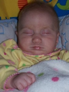 Baby Jaeli - one of only four known to have Jaeli's Syndrome.